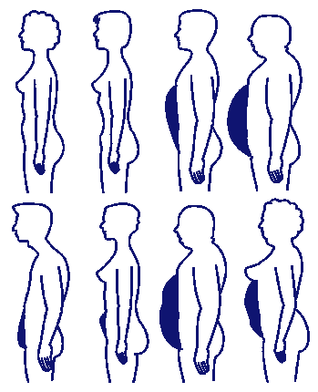 Bauchformen nach F. X. Mayr